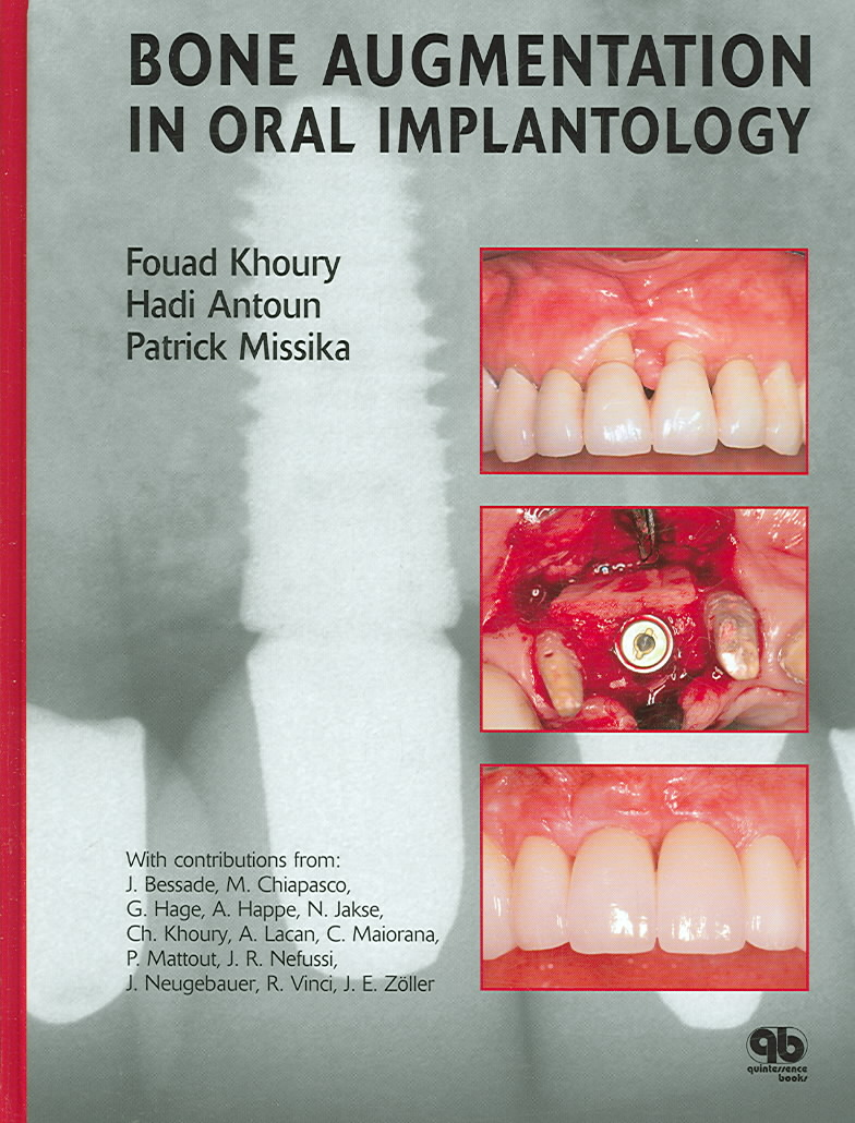 Bone Augmentation in Oral Implantology By Khoury, Fouad/ Antoun, Hadi/ Missika, Patrick